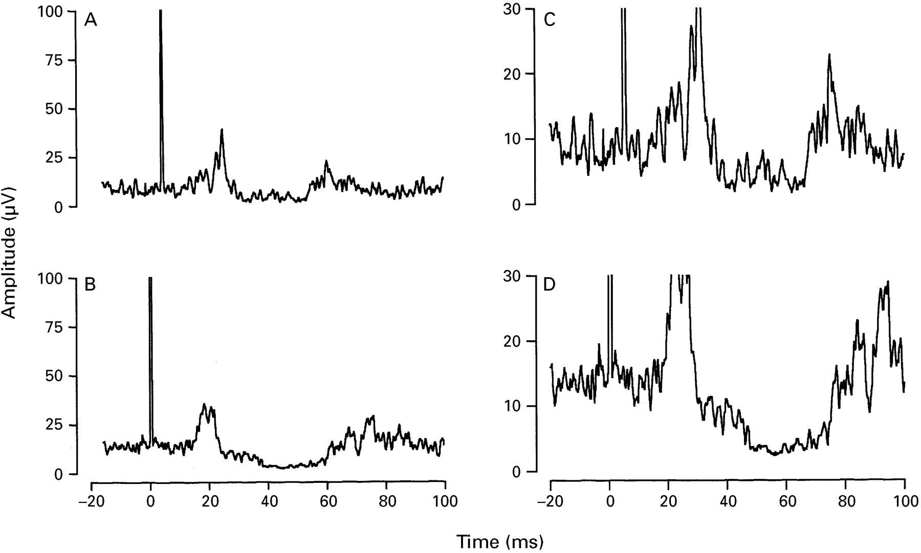 Effects of antipsychotic medication on electromyographic