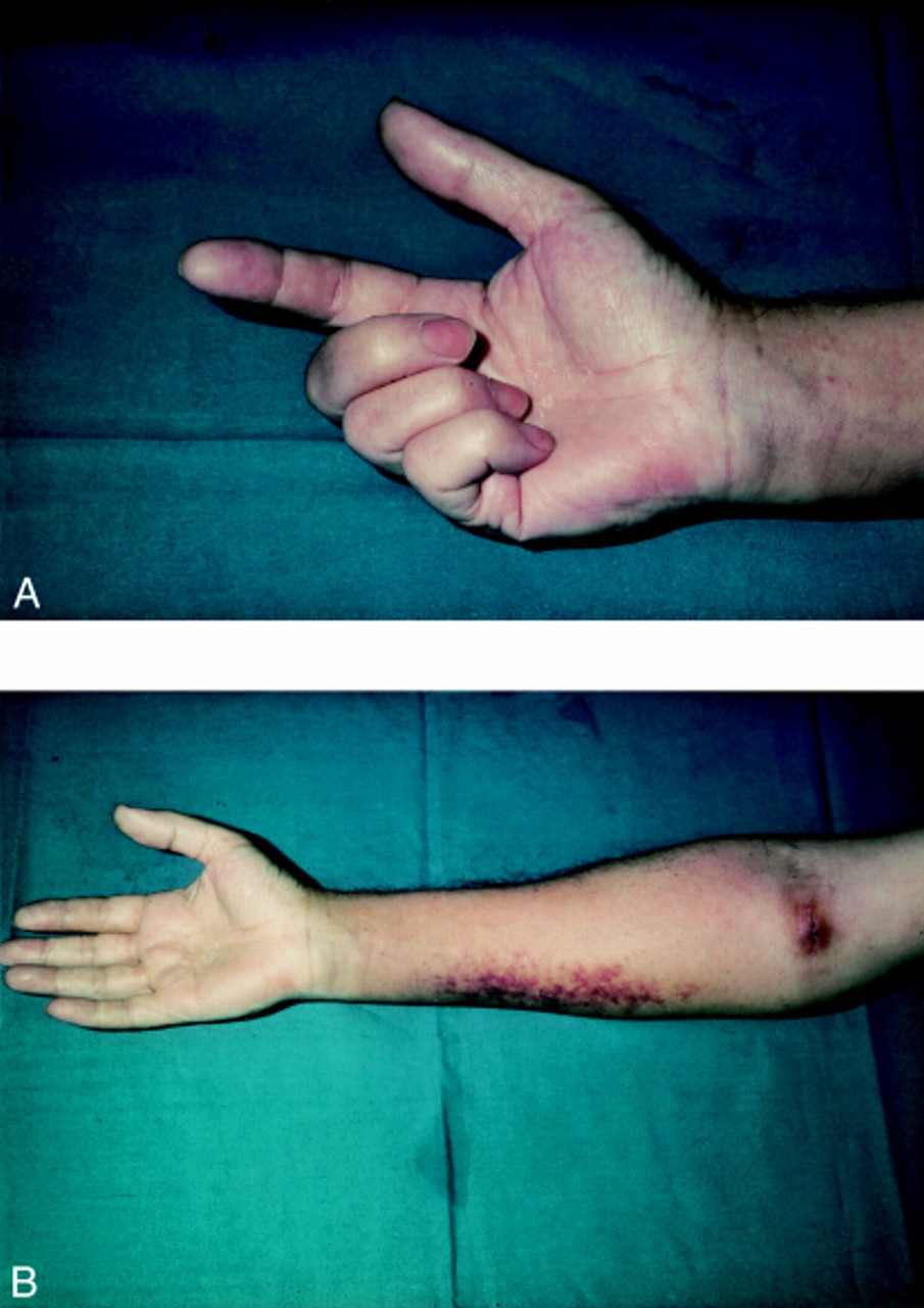 Median nerve injury: an underrecognised complication of
