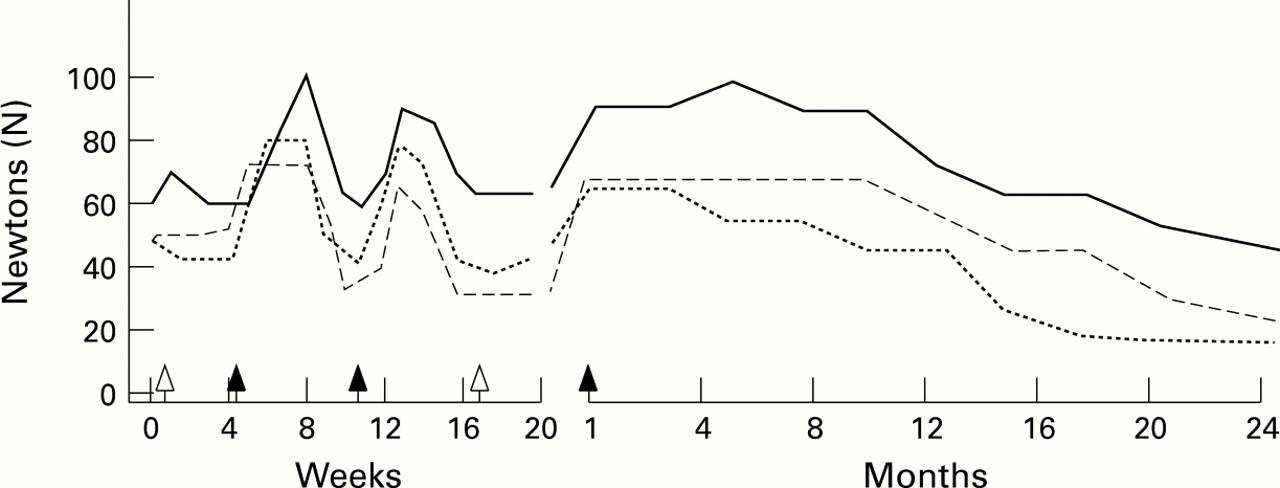 Intravenous immunoglobulin treatment in lower motor neuron