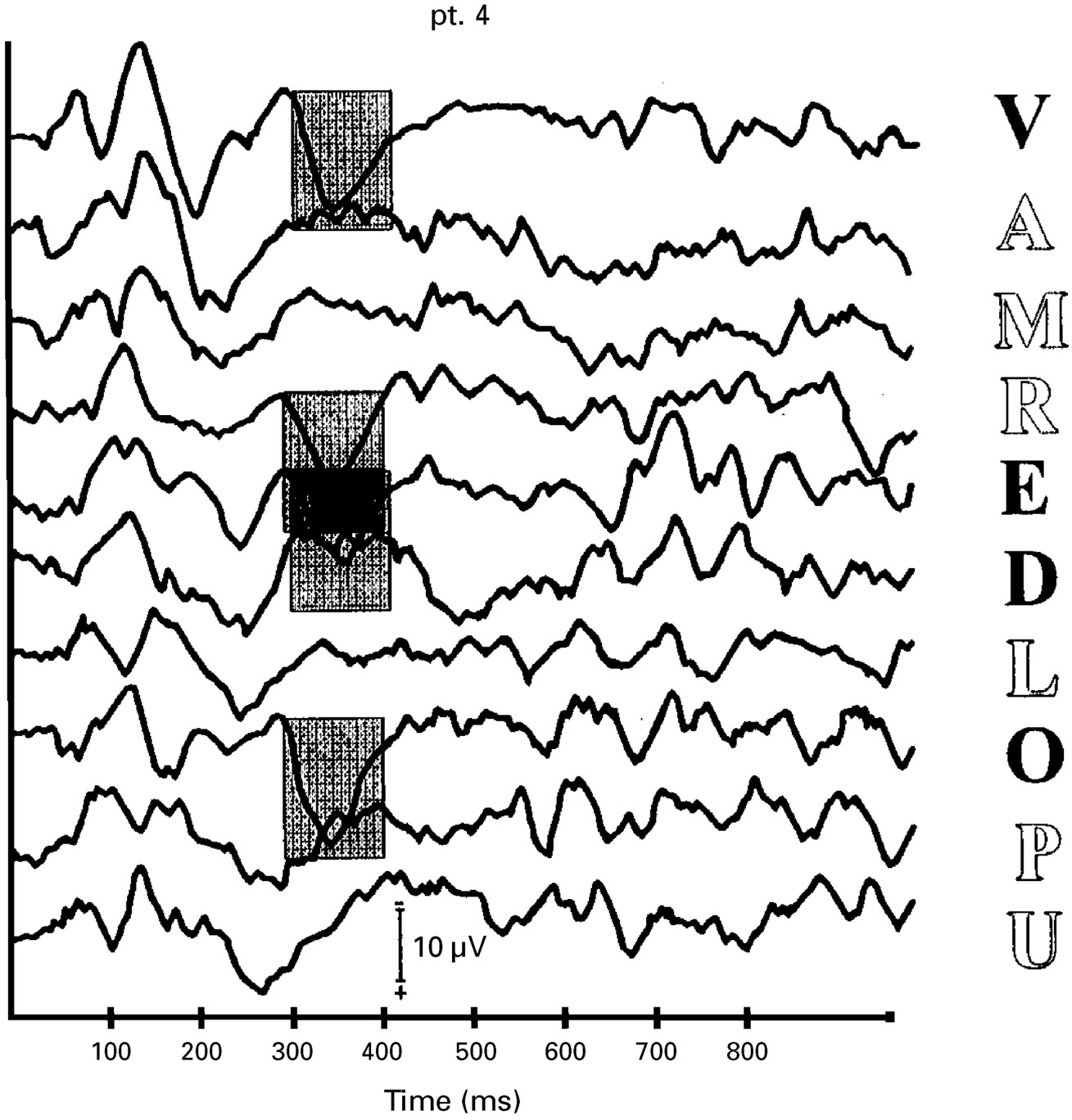 Event related potentials recorded in patients with locked-in ...