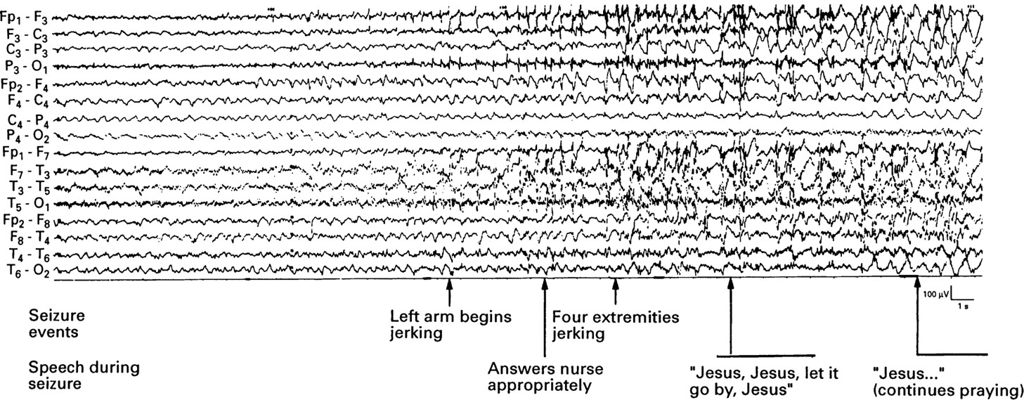 Painful generalised clonic and tonic-clonic seizures with retained