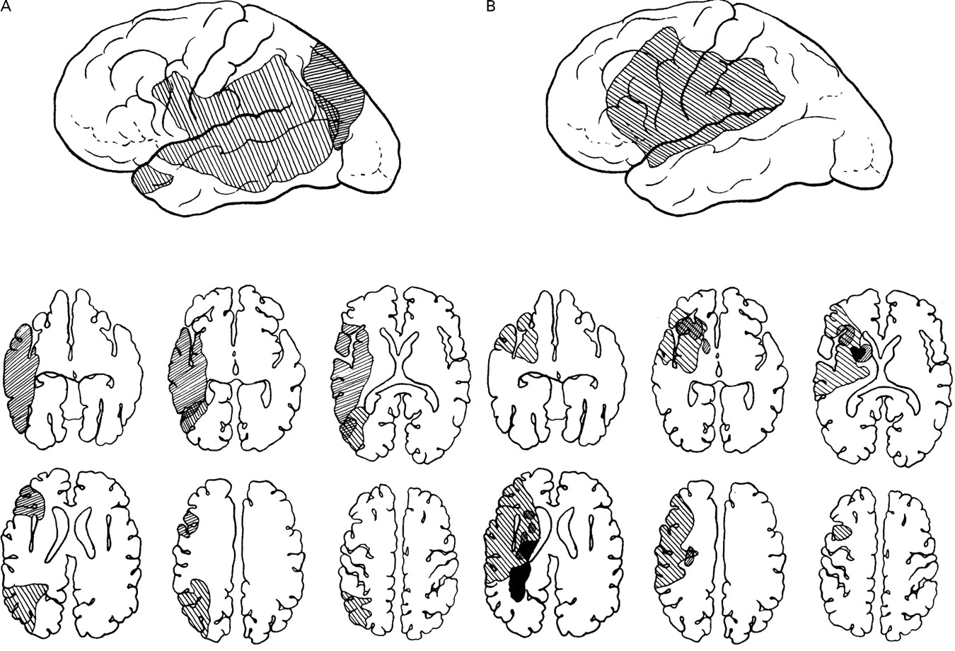 Dissociation of sensory-attentional from motor-intentional