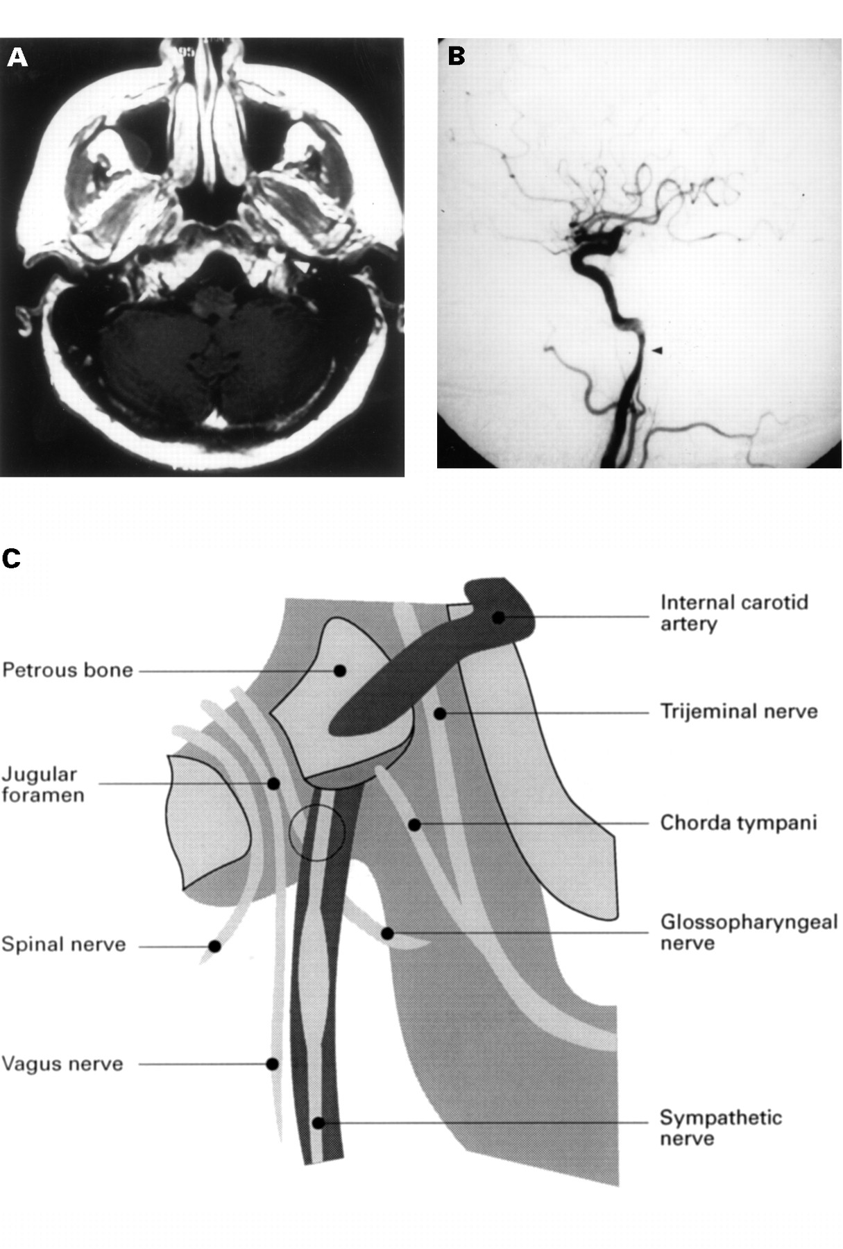 Carotid Artery Stenosis: Comparison of 3D Time-of-Flight ...
