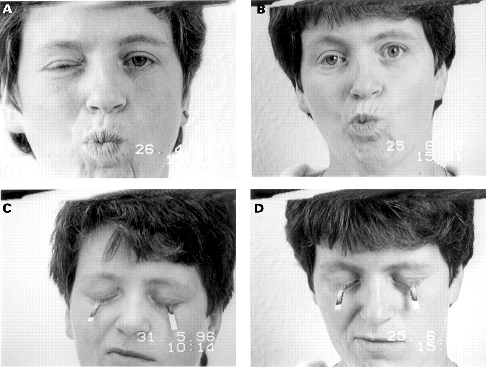 Idiopathic facial palsy, fucking young black girls