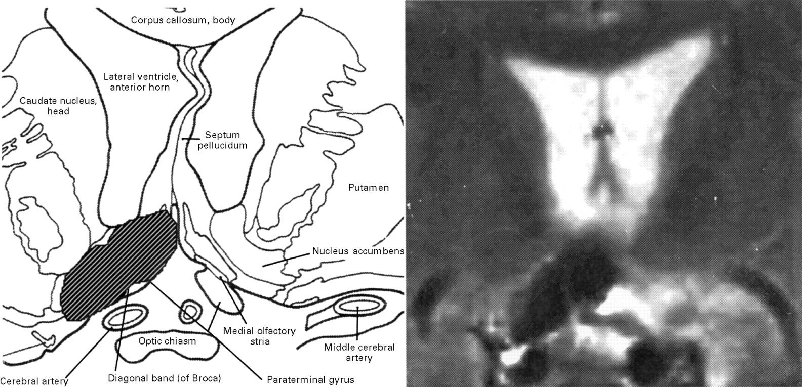 Amnesia after a discrete basal forebrain lesion | Journal of ...