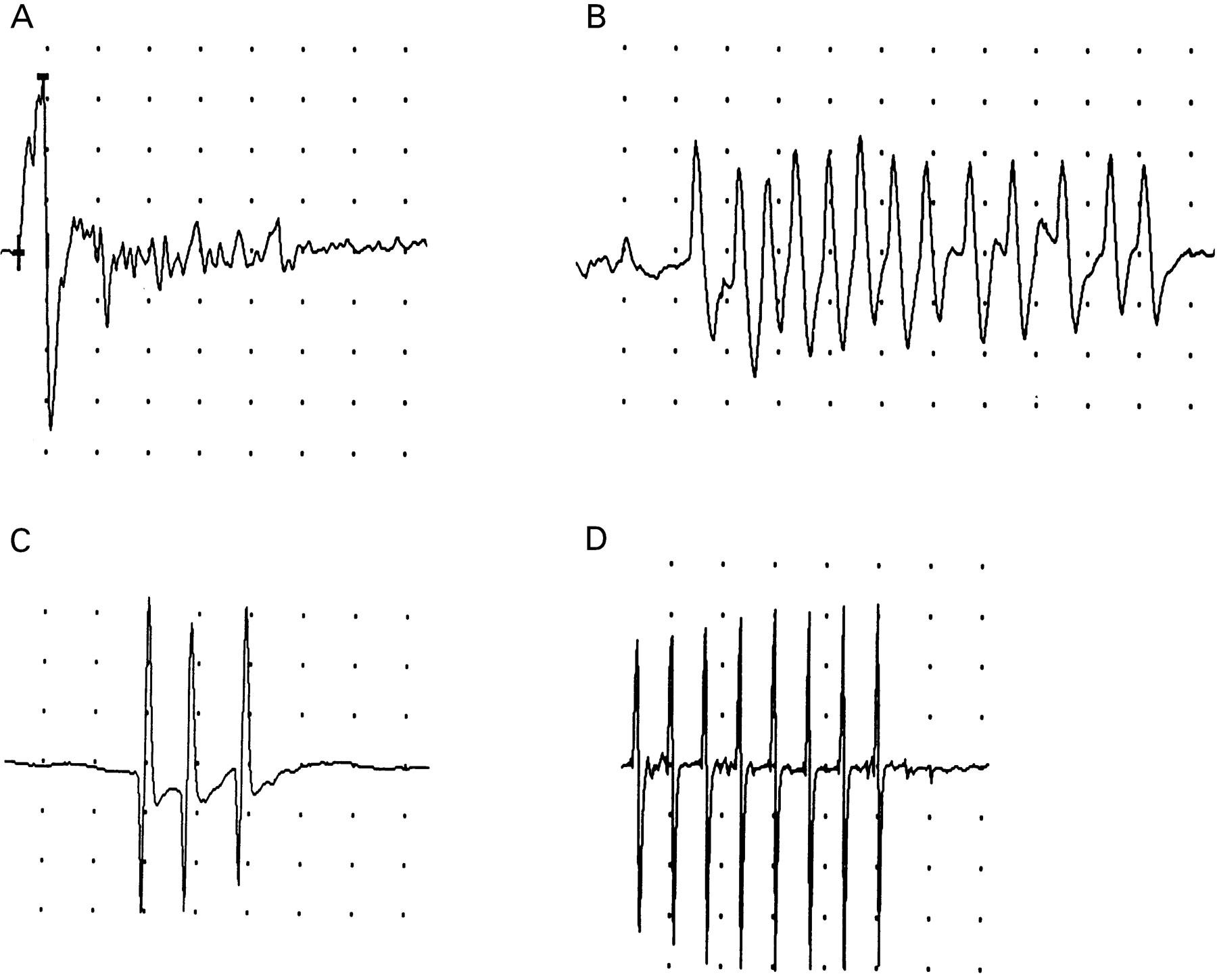 Morvan's fibrillary chorea: a paraneoplastic manifestation