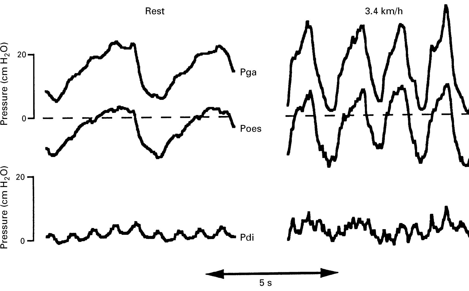 Respiratory Aspects Of Neurological Disease Journal Of Neurology