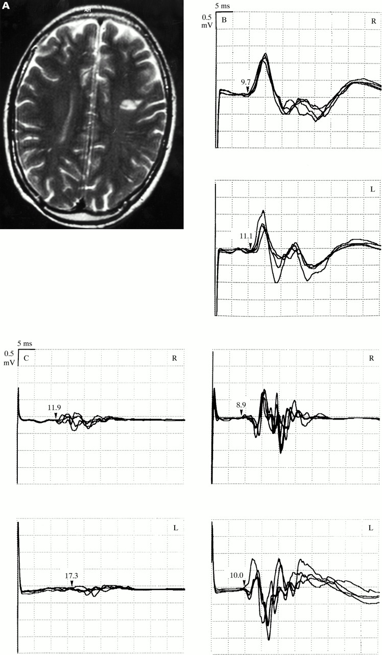 Isolated dysarthria due to extracerebellar lacunar stroke: a central ...