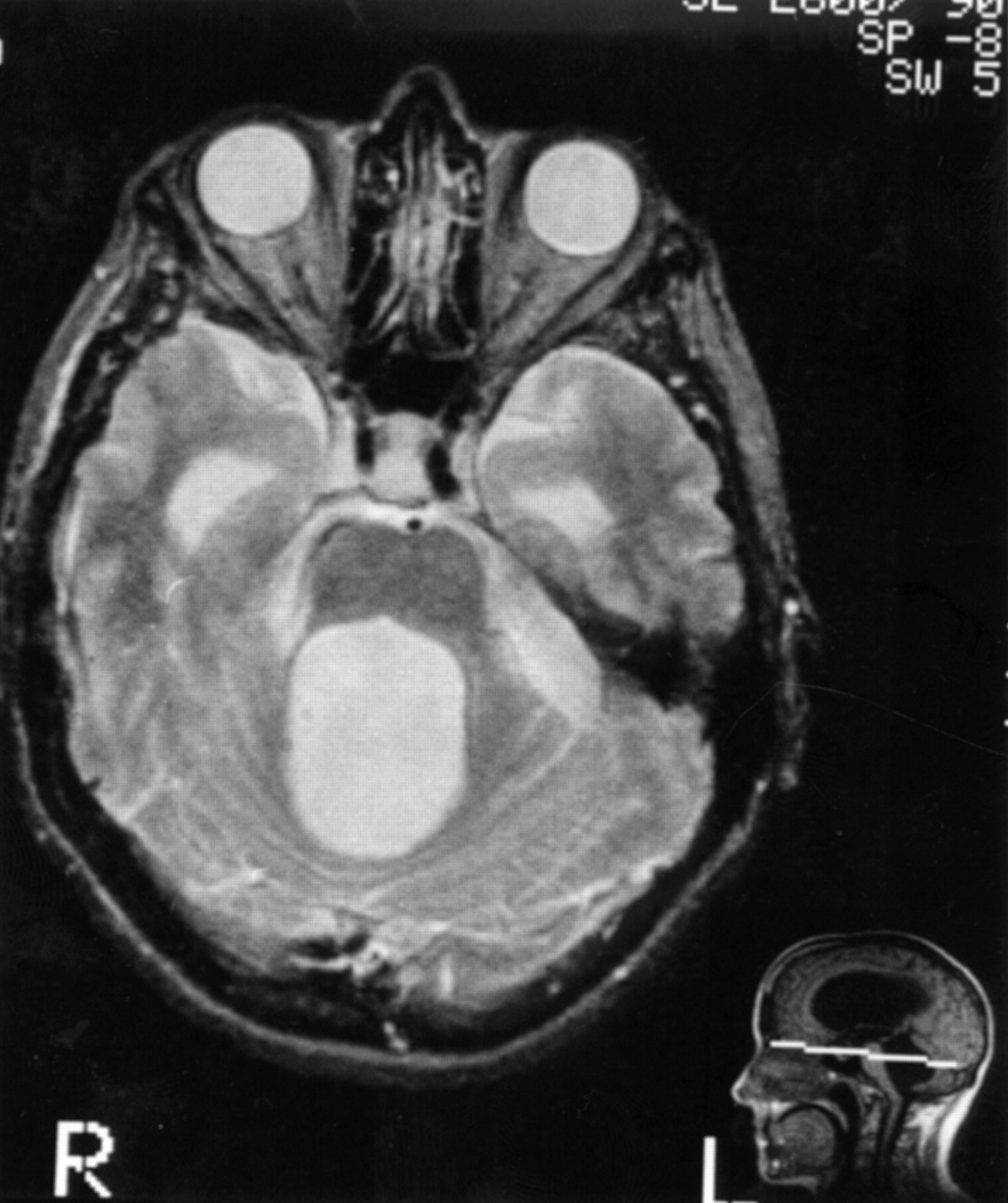With congenital hydrocephalus adults