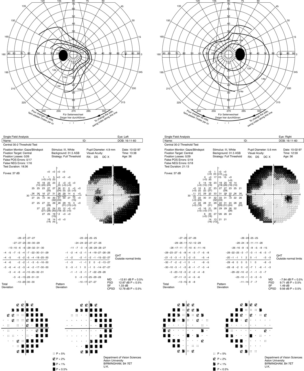 Visual Field Defects Associated With Vigabatrin Therapy -3438
