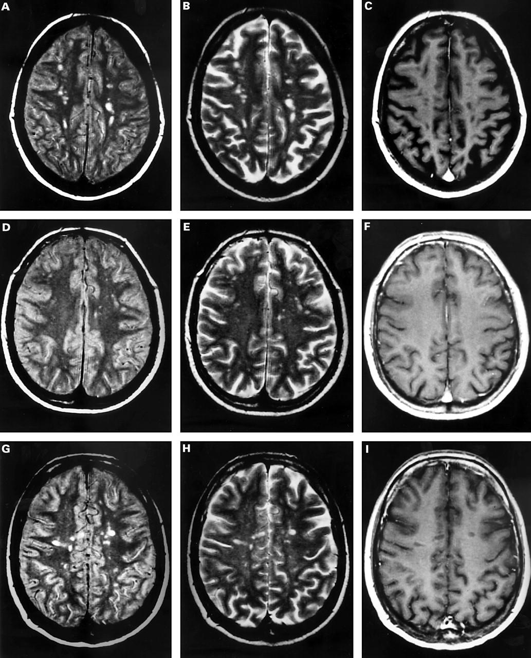 Brain involvement in systemic immune mediated diseases