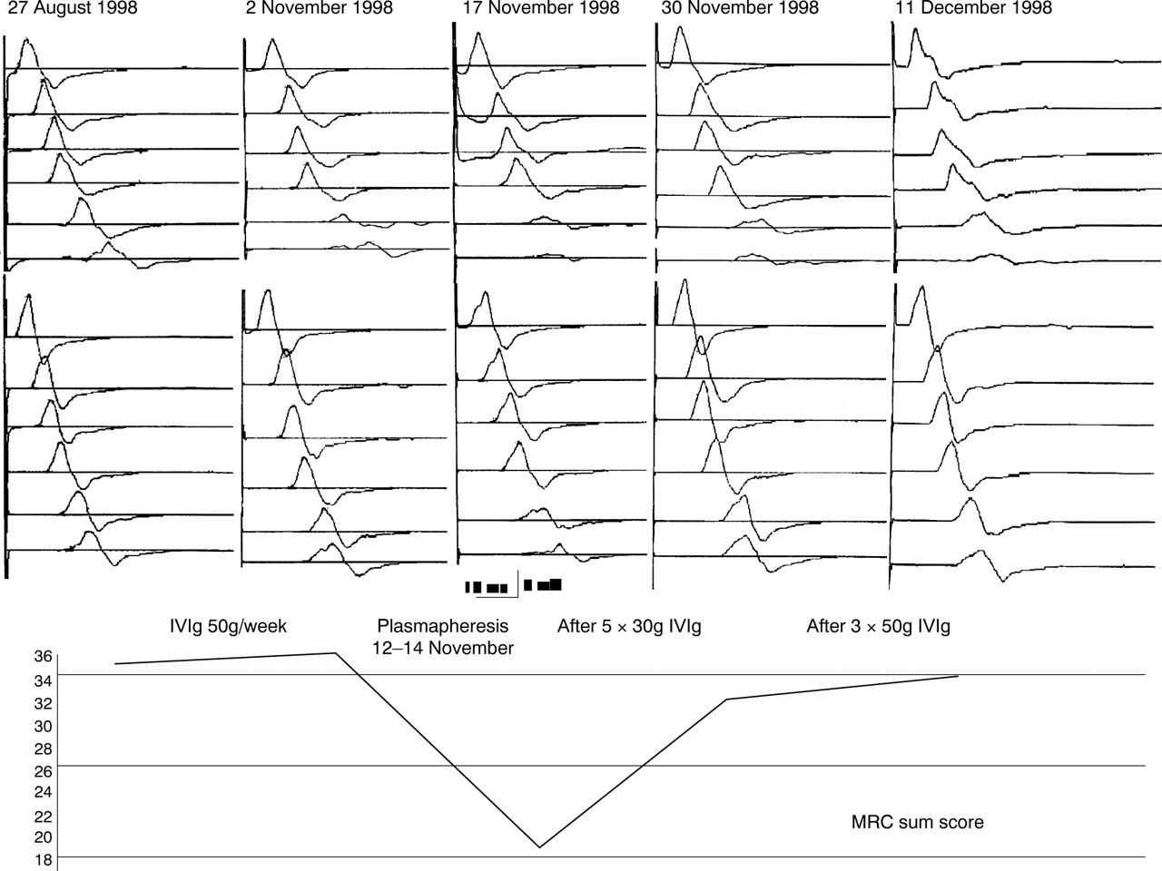 Plasmapheresis in multifocal motor neuropathy: a case report