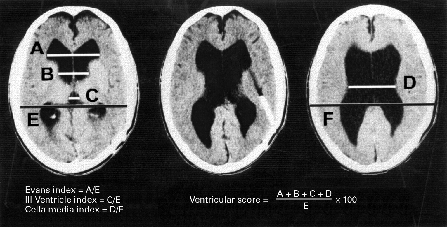 How To Measure Diameter >> Cognitive changes after cerebrospinal fluid shunting in young adults with spina bifida and ...