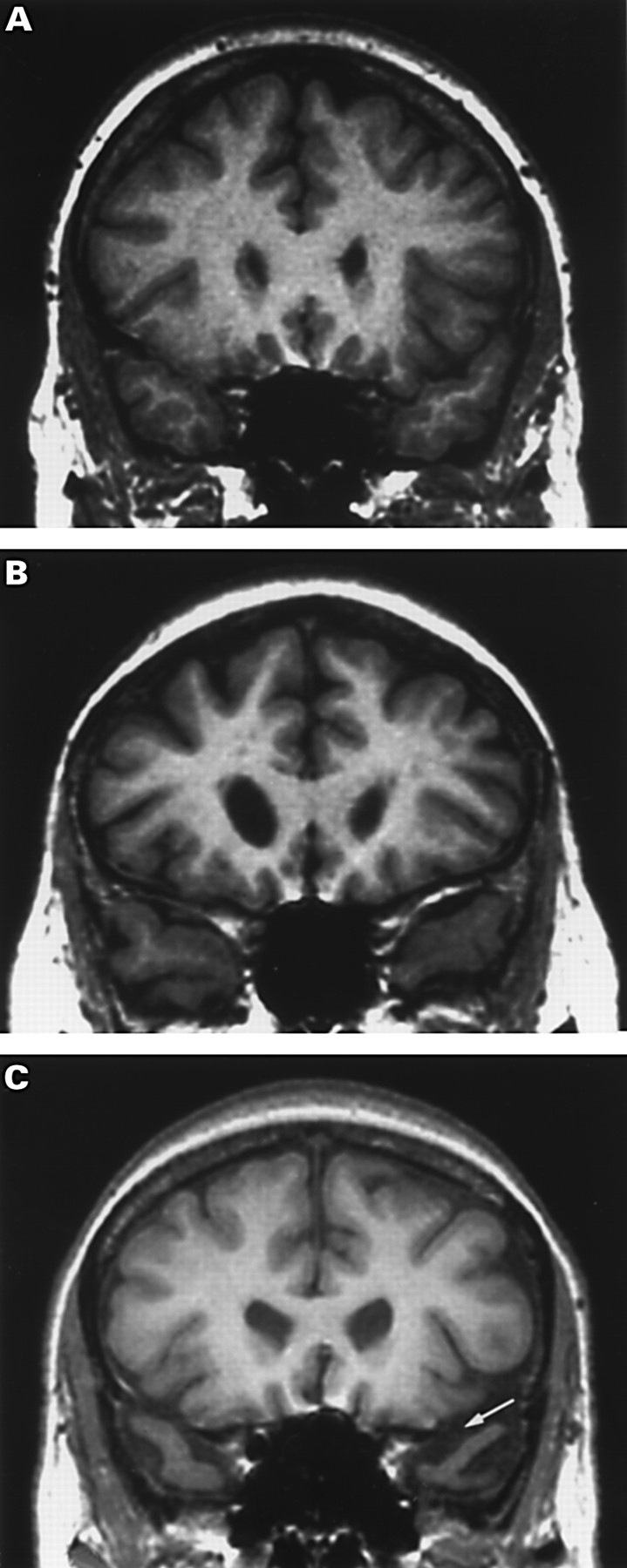 Temporal Lobe Rating Scale Application To Alzheimers Disease And