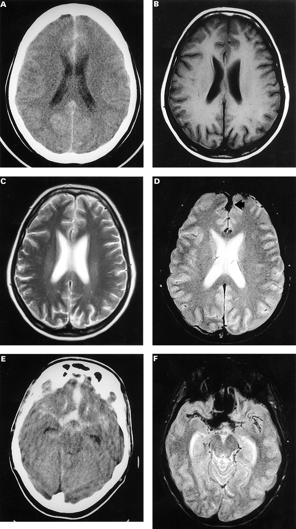 detection of subarachnoid haemorrhage with magnetic