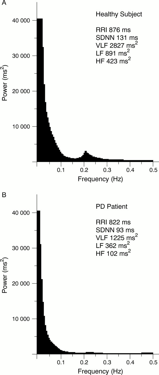 Ambulatory ECG and analysis of heart rate variability in