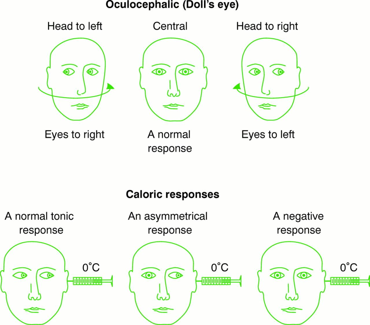 Neurological Assessment Of Coma Journal Of Neurology Neurosurgery