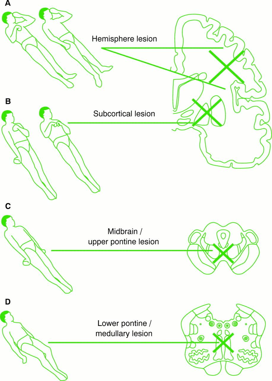 NEUROLOGICAL ASSESSMENT OF COMA   Journal of Neurology