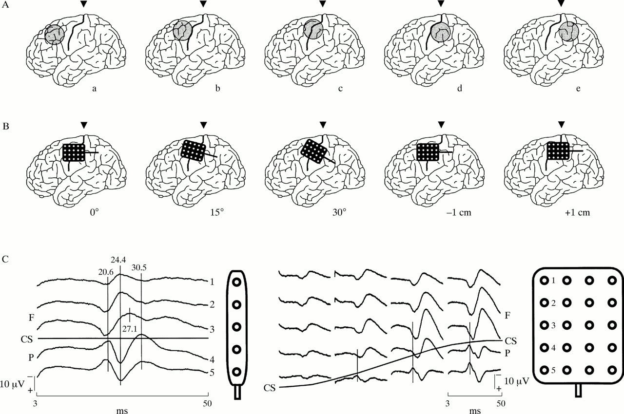 Localisation of the sensorimotor cortex during surgery for brain ...