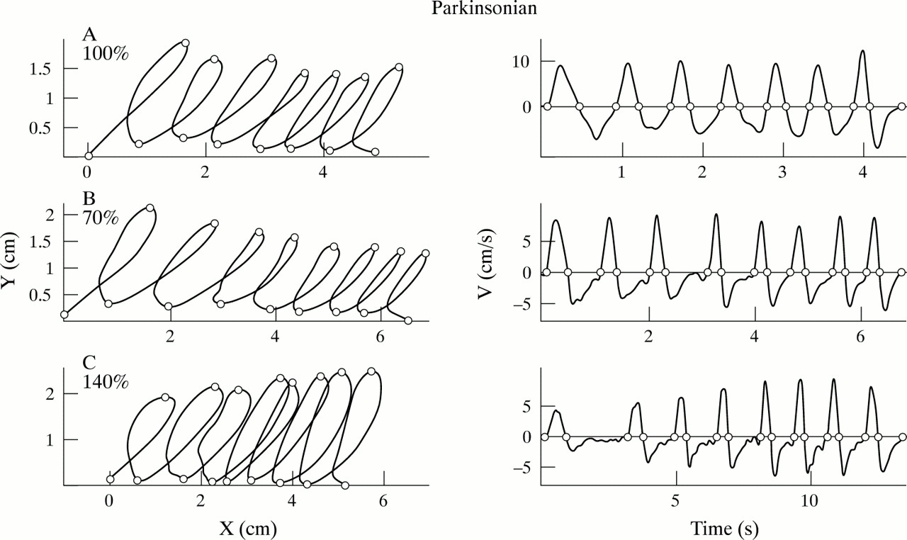 Micrographia (handwriting)
