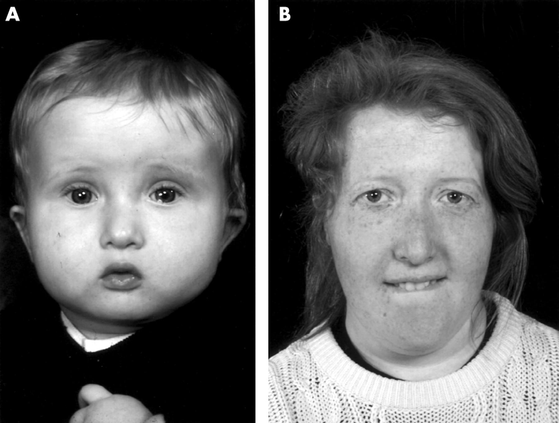 Строение глотки ребенка фото