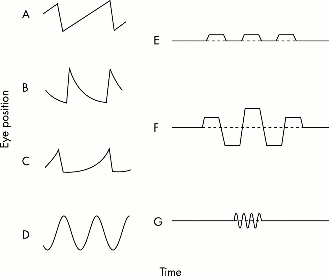 Diagnostic value of nystagmus: spontaneous and induced ocular