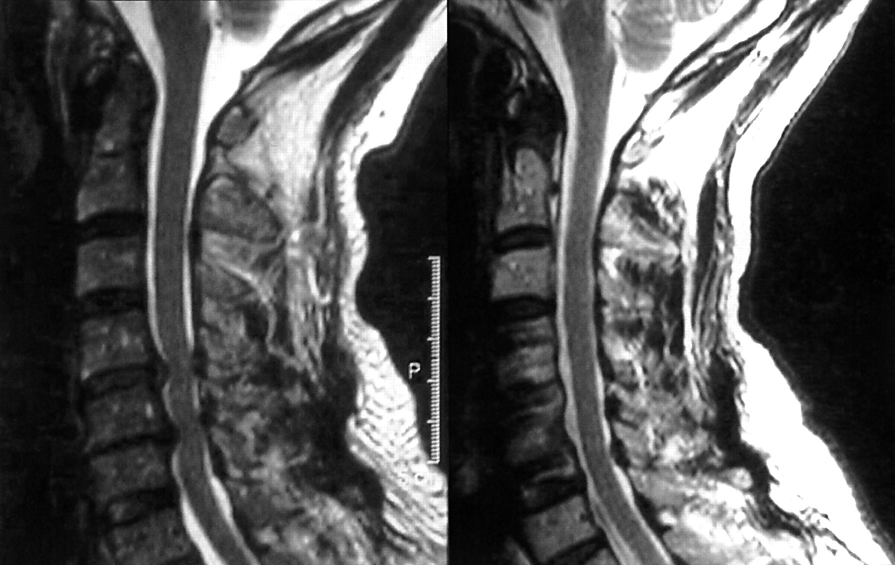 surgical disorders of the cervical spine presentation and