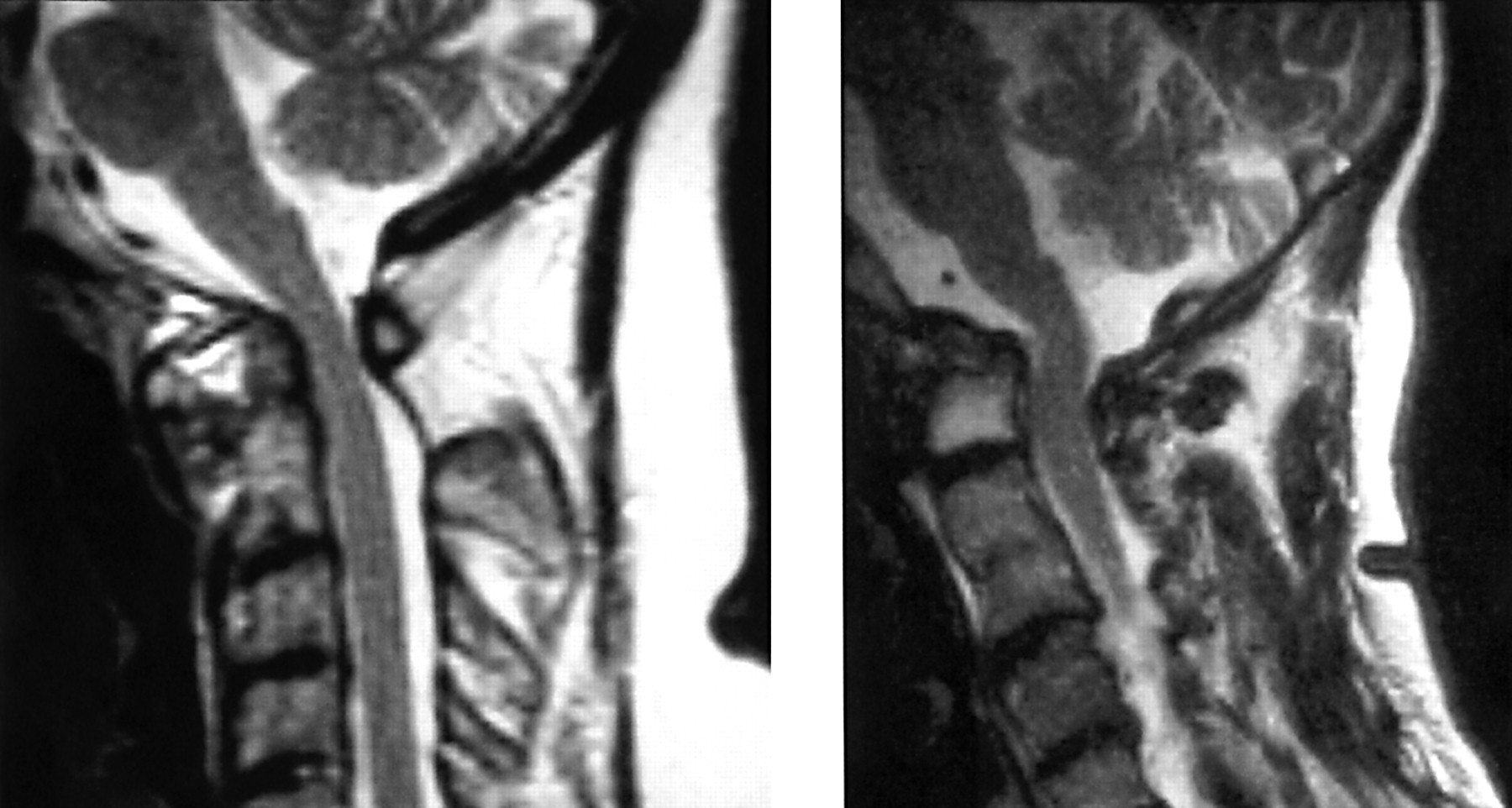 SURGICAL DISORDERS OF THE CERVICAL SPINE: PRESENTATION AND ...