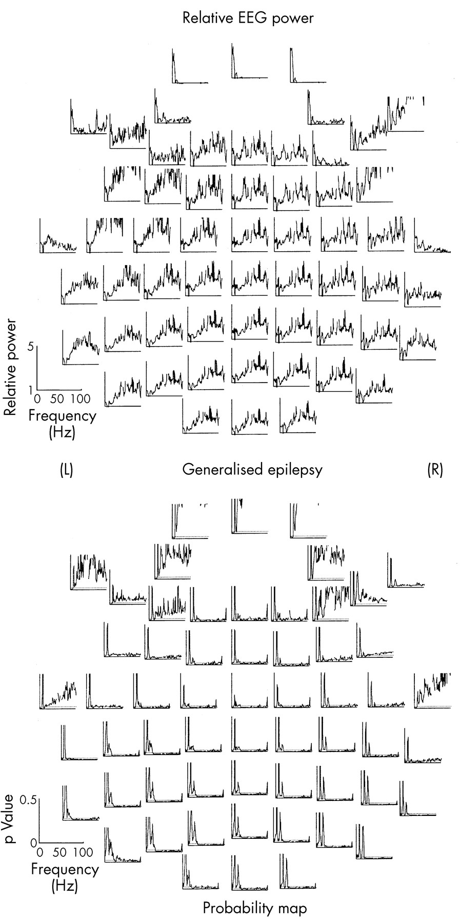 abnormal eeg and epilepsy