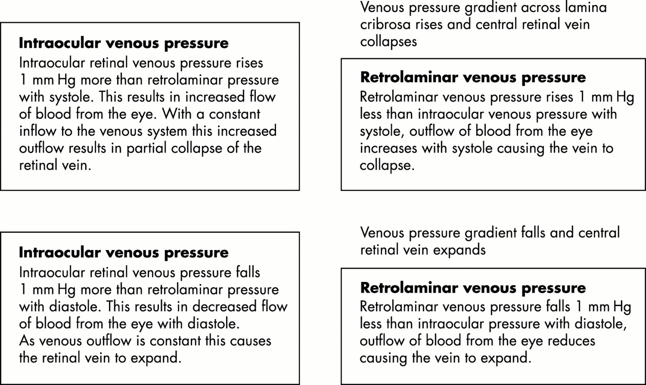 Spontaneous retinal venous pulsation: aetiology and significance ...