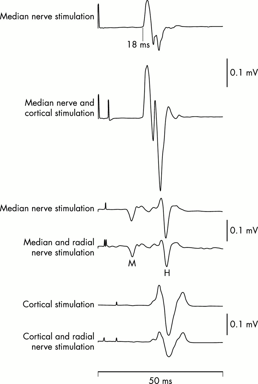 The deep tendon and the abdominal reflexes | Journal of