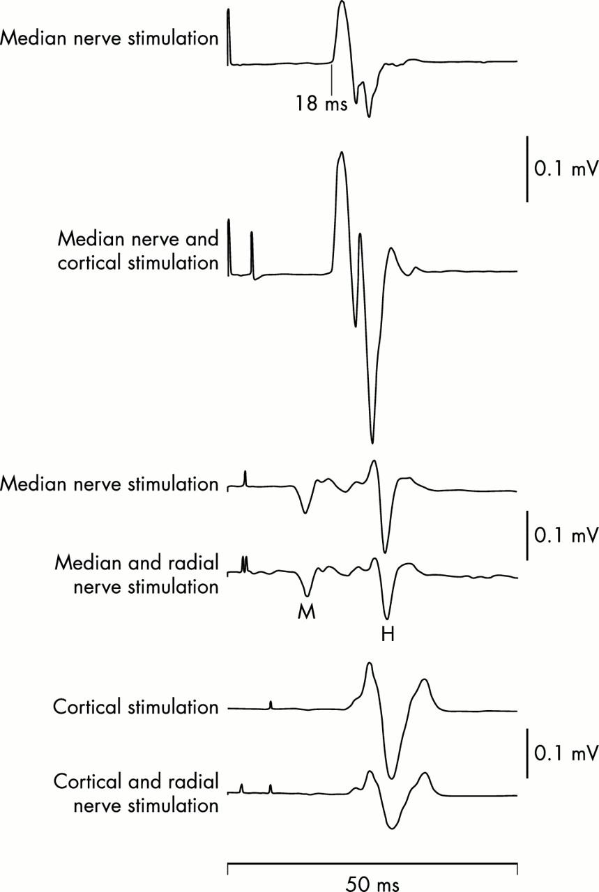 The deep tendon and the abdominal reflexes | Journal of Neurology ...