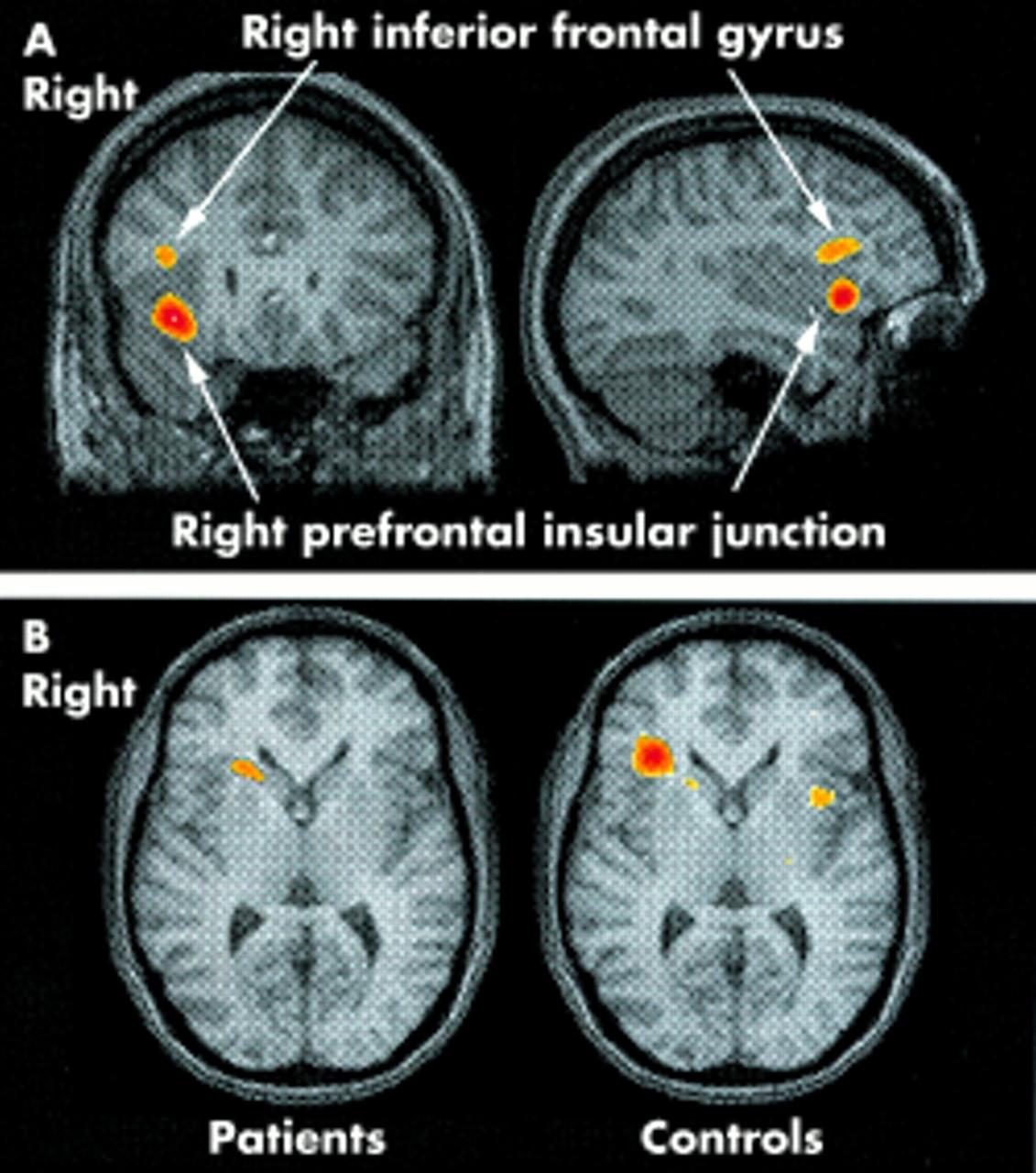 A study of persistent post-concussion symptoms in mild head trauma