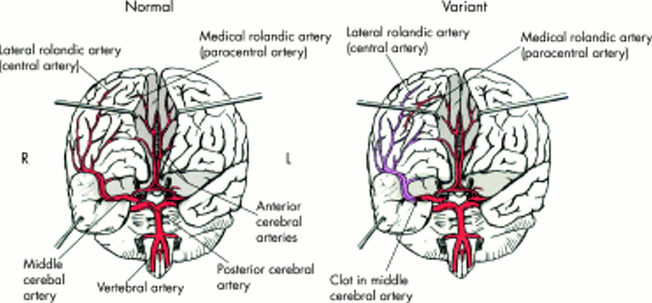 Middle Cerebral Artery Territory Infarction Sparing The Precentral
