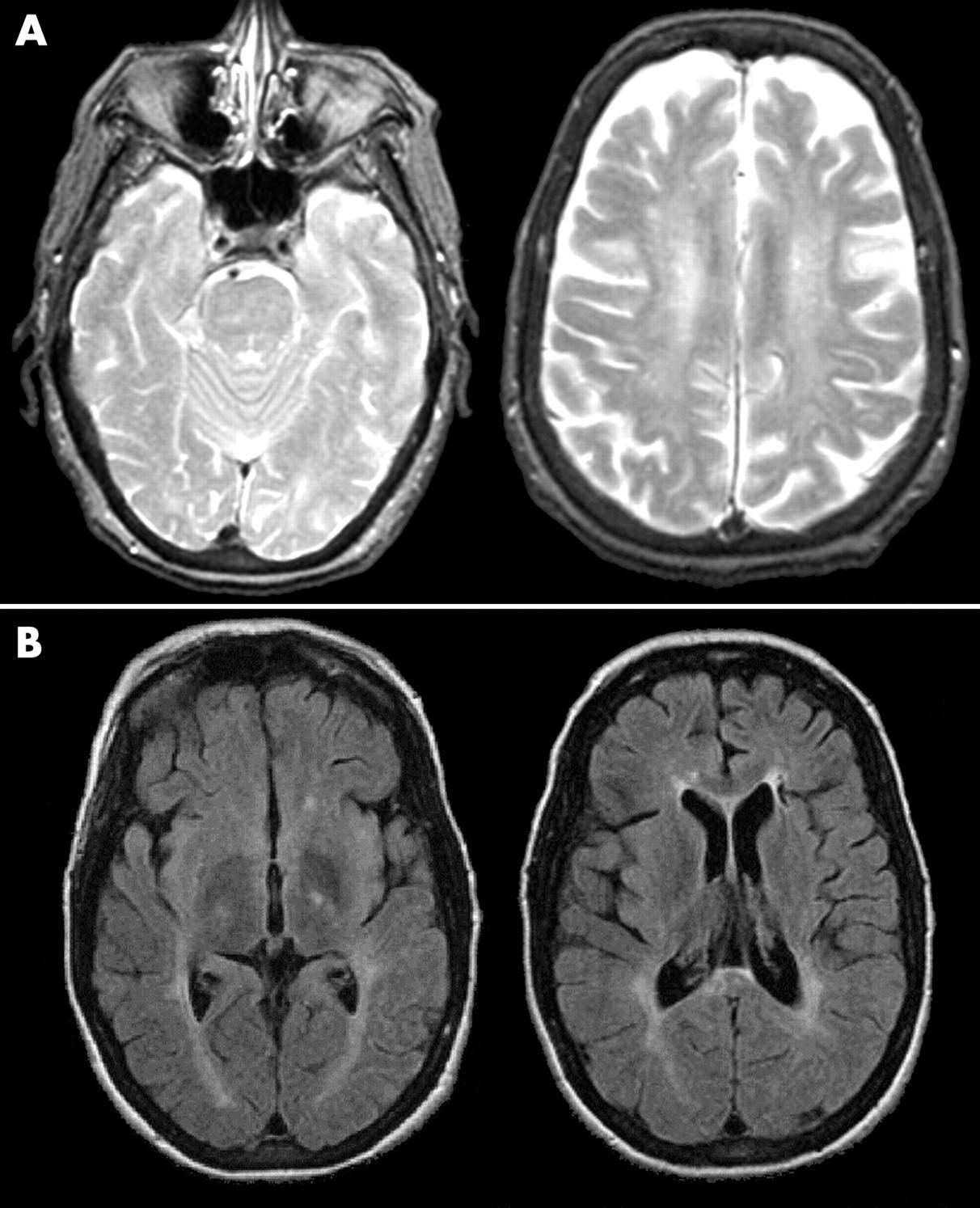 adult onset niemannpick disease type c presenting with