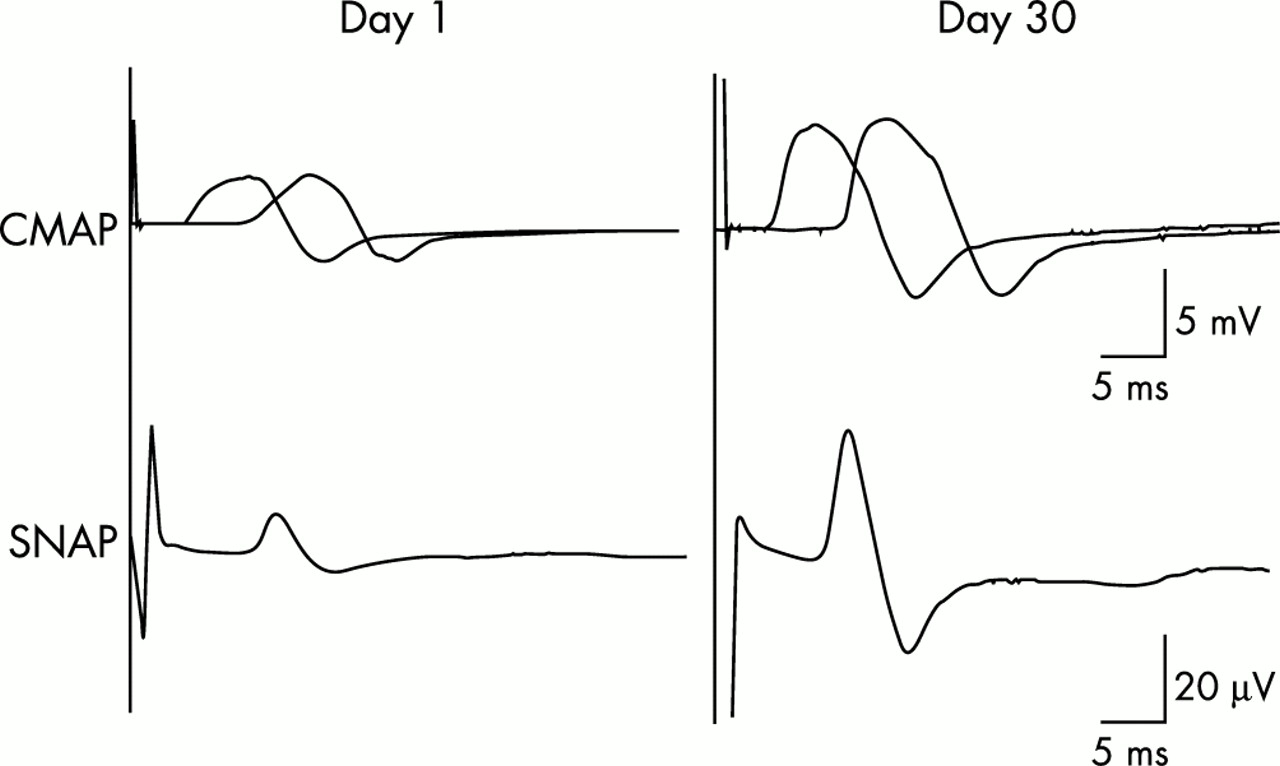 Reversible acute axonal polyneuropathy associated with