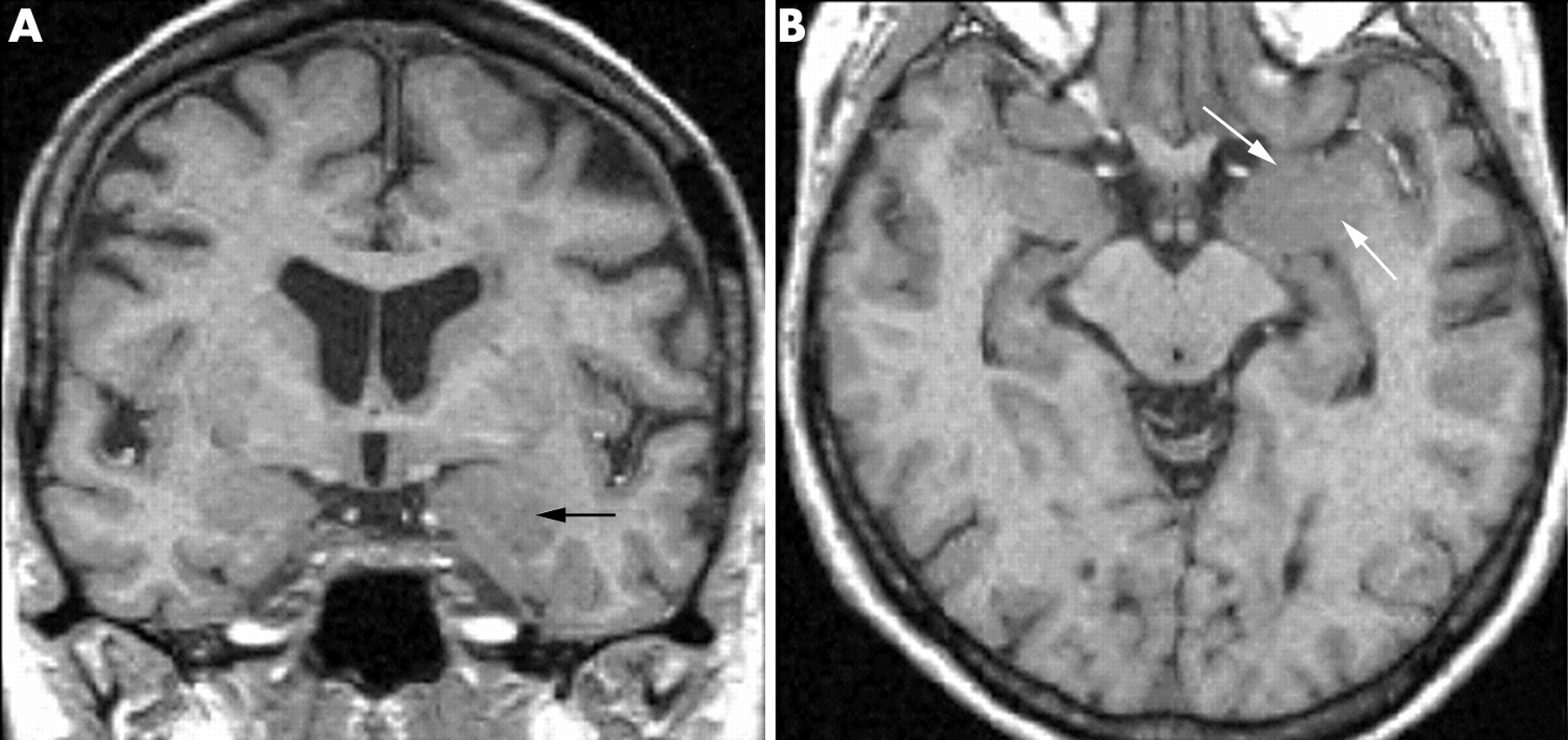 "Amygdala volumetry in ""imaging-negative"" temporal lobe epilepsy ..."