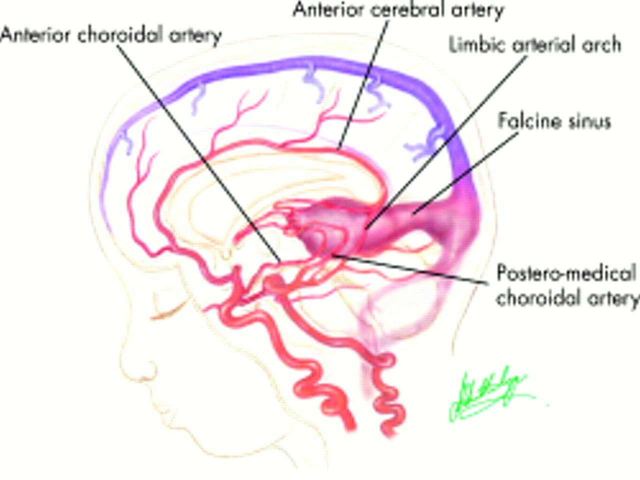 VEIN OF GALEN MALFORMATIONS | Journal of Neurology, Neurosurgery ...