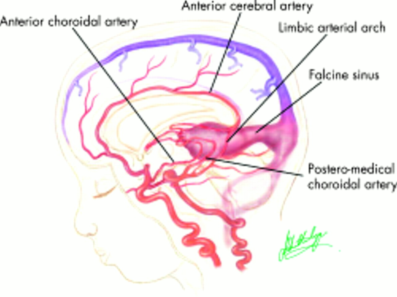 Vein Of Galen Malformations Journal Of Neurology Neurosurgery