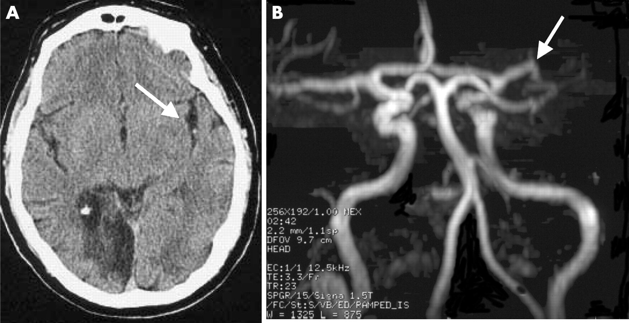 The probability of middle cerebral artery MRA flow signal ...