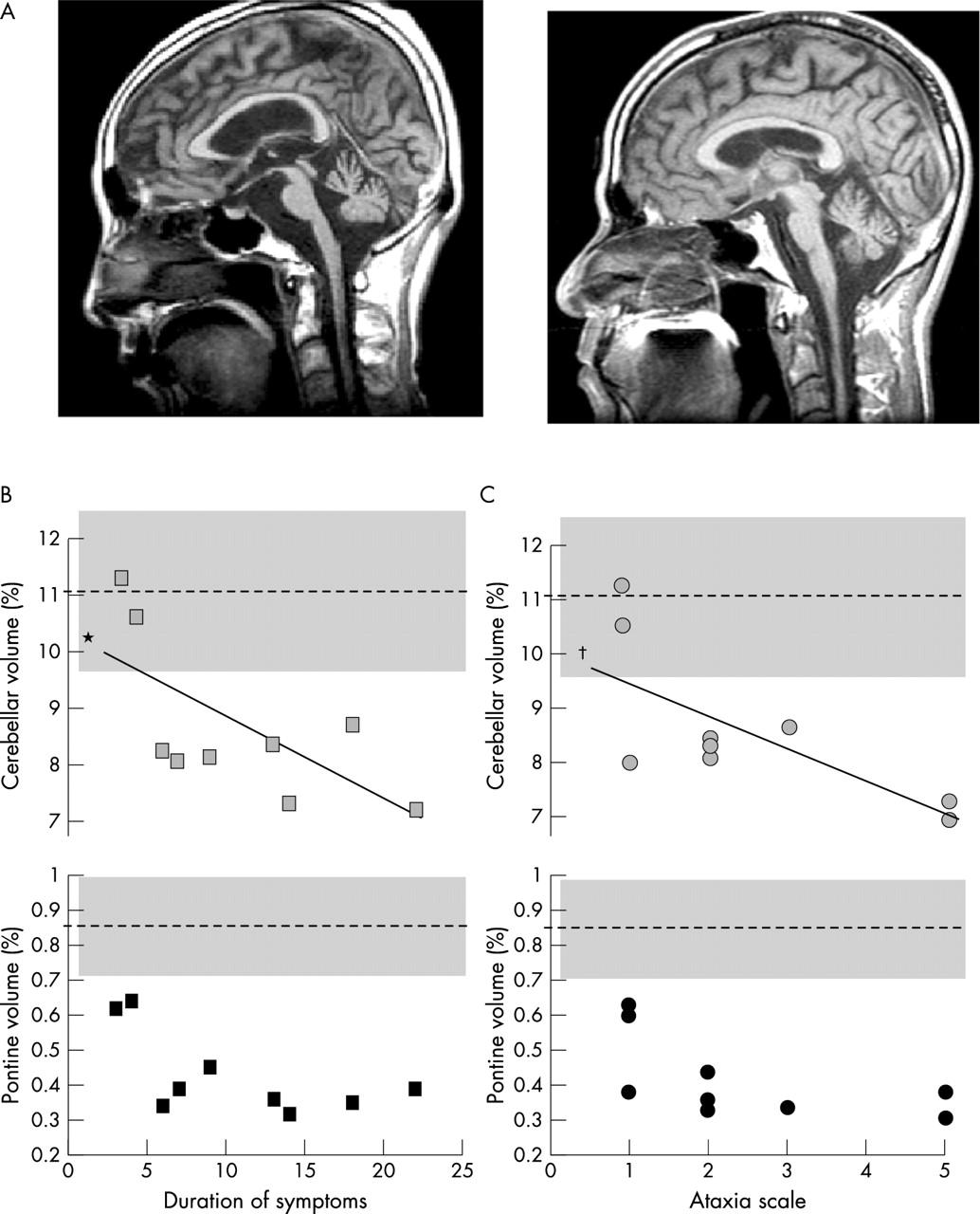 spinocerebellar atrophy Mr brain scans demonstrate cerebellar atrophy infantile-onset spinocerebellar ataxia posterior column and retinitis pigmentosa spinocerebellar ataxia type 8 spinocerebellar ataxia type 10 spinocerebellar ataxia type 14 sporadic spinocerebellar ataxia x-linked sideroblastic anemia.