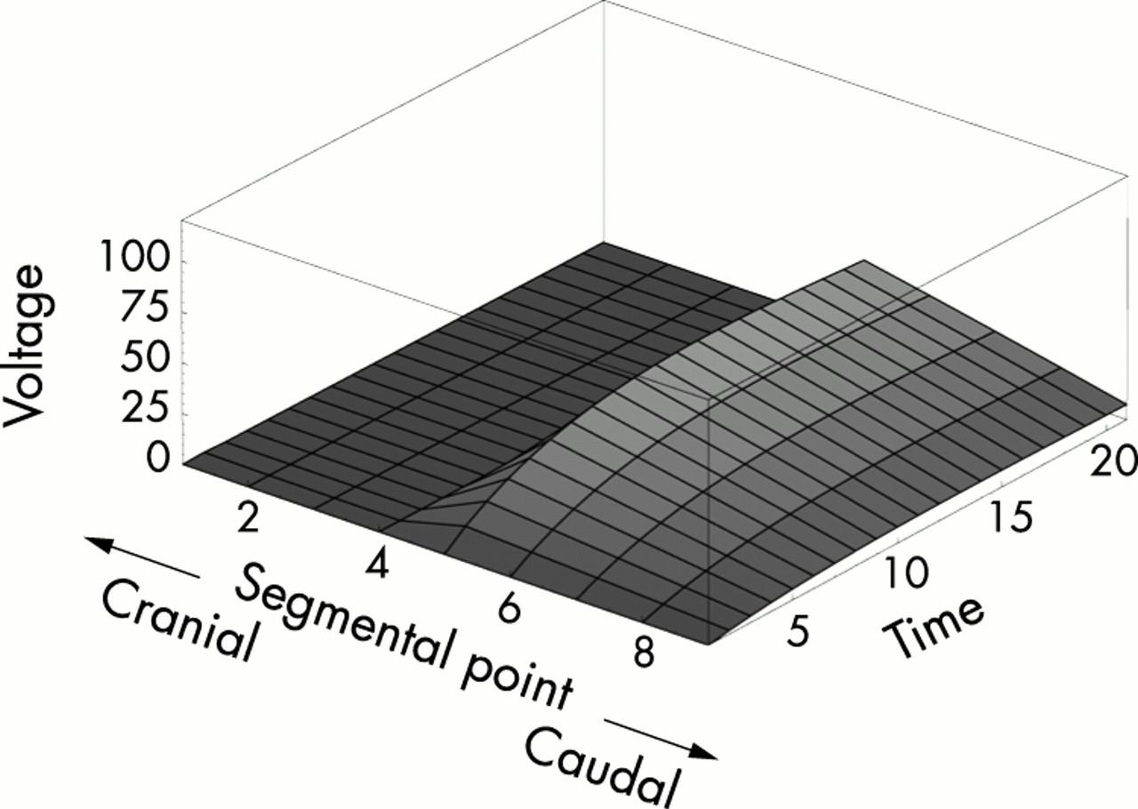 Theoretical analysis of the pathophysiology of syringomyelia