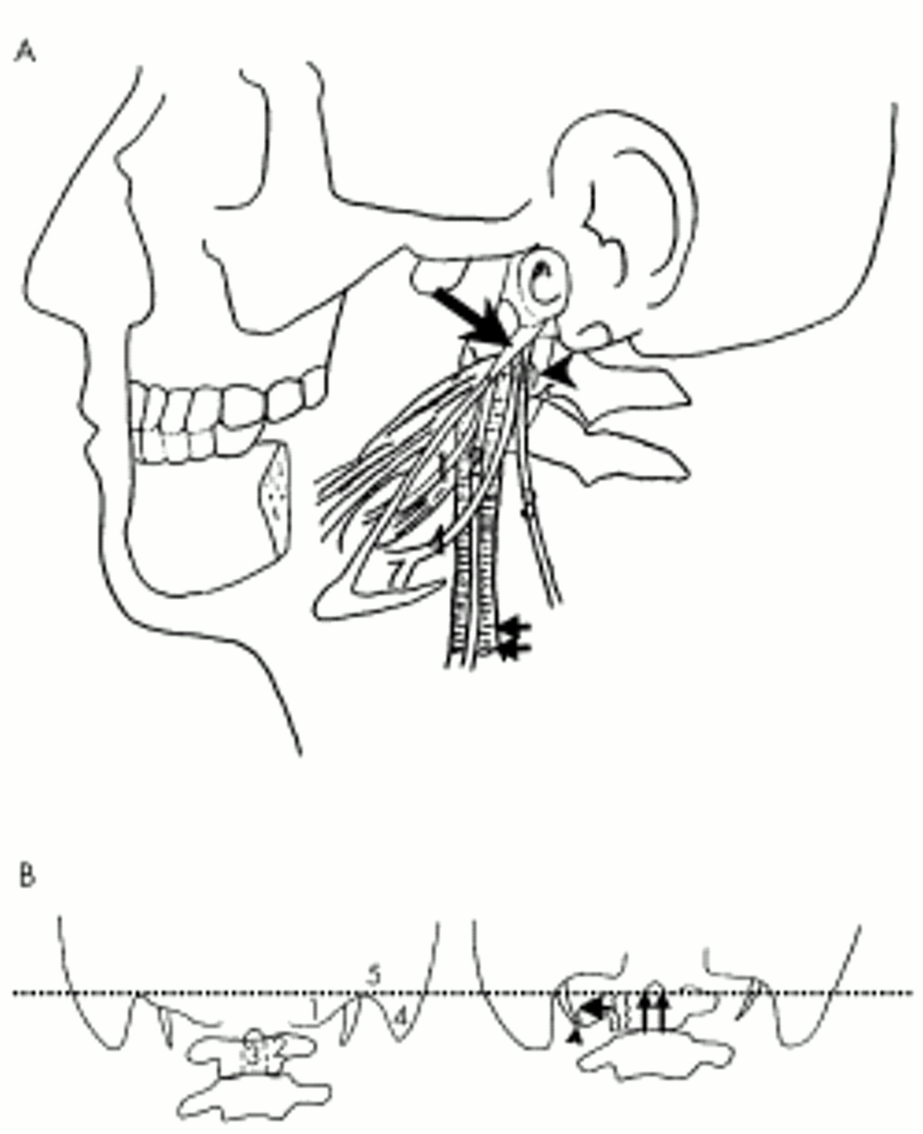 A Case Of Collet Sicard Syndrome Associated With Traumatic Atlas