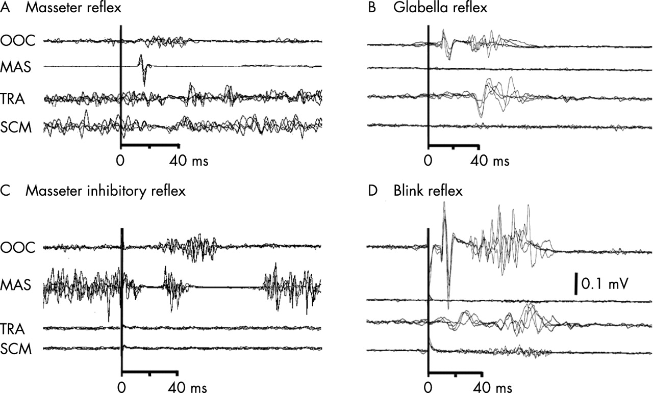 blink response journal The human startle response is a sensitive or needle electromyographic (emg) recording electrodes currently, surface emg is the most frequently used measure in human startle blink research it has been shown, however journal of abnormal child psychology.