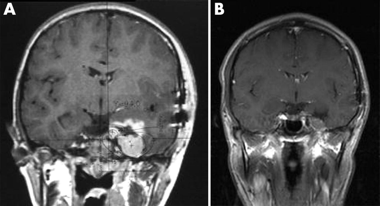 Long Term Experience Of Gamma Knife Radiosurgery For