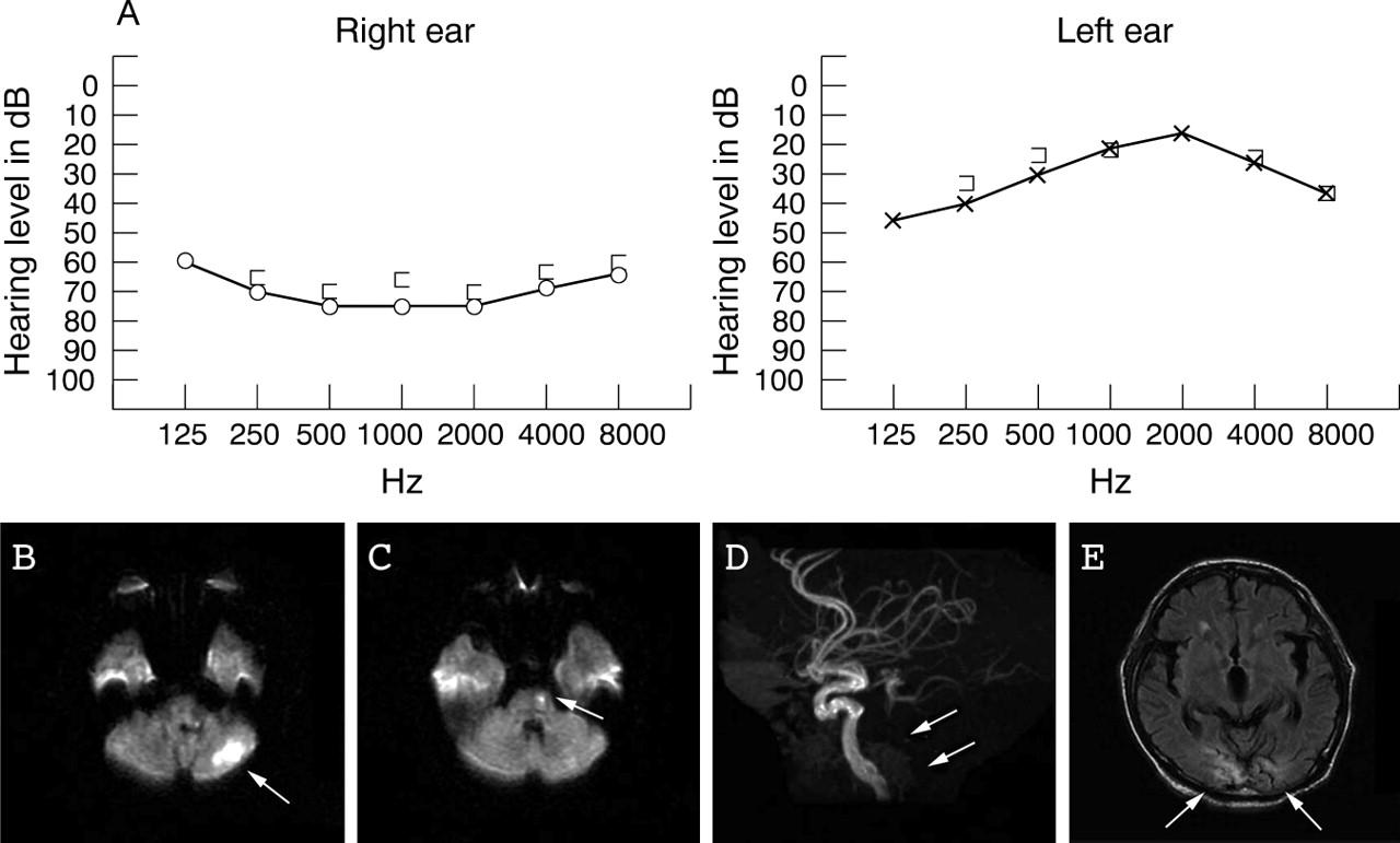 A case of superior cerebellar artery syndrome with
