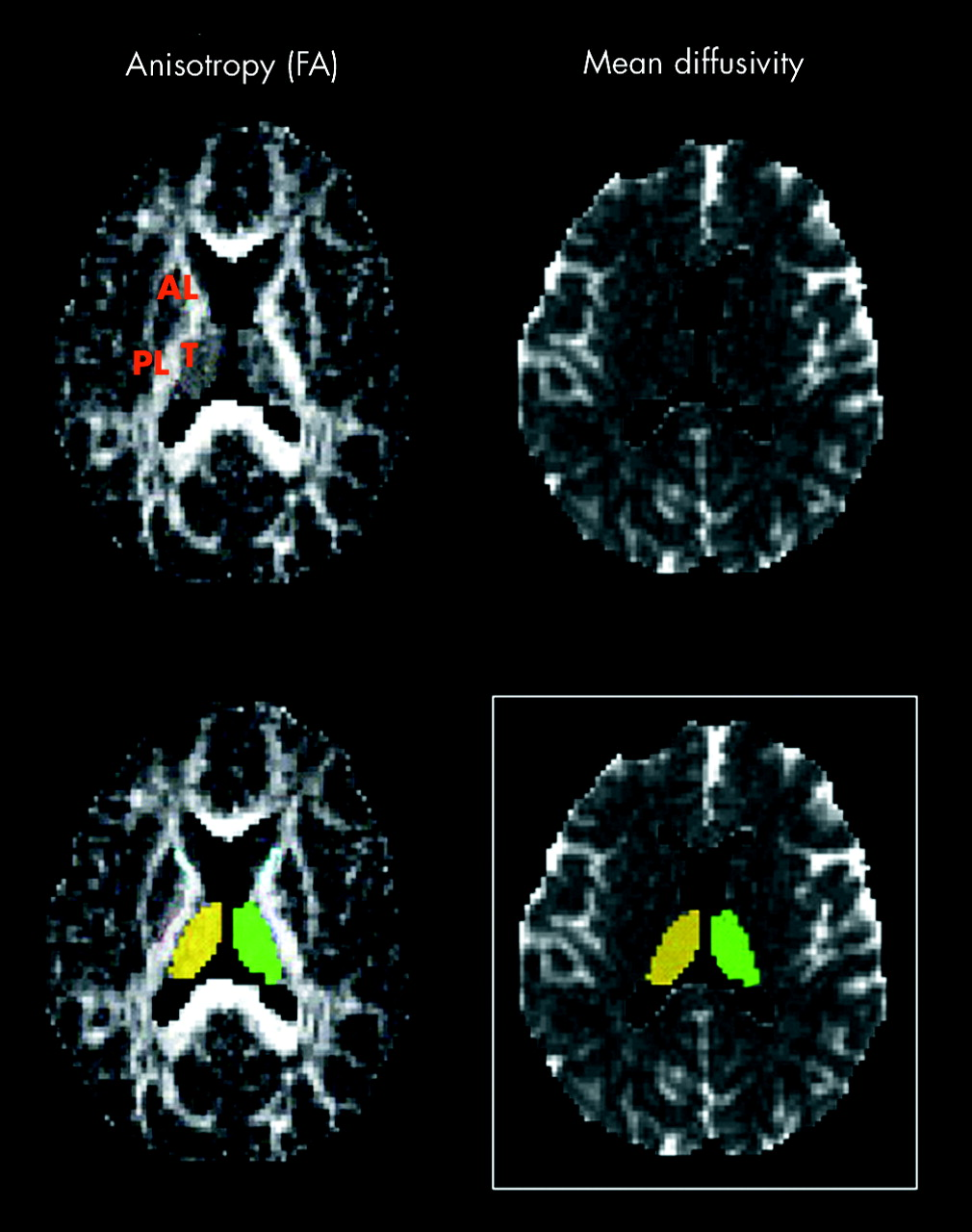 Longitudinal Thalamic Diffusion Changes After Middle Cerebral Artery