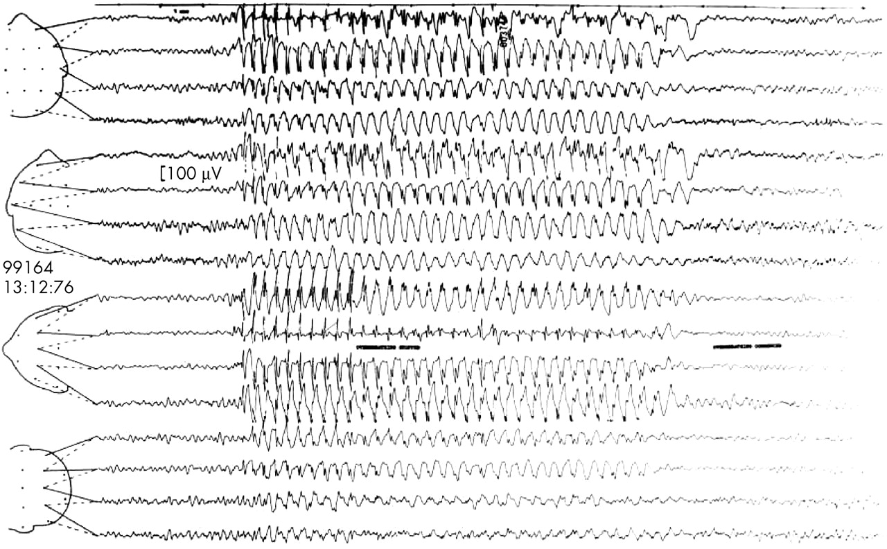 EEG in the diagnosis, classification, and management of patients