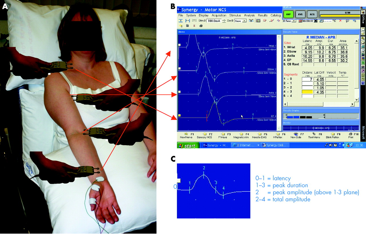 how to read a nerve conduction test