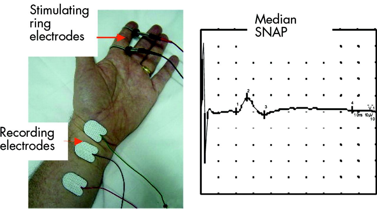 Nerve conduction studies: essentials and pitfalls in practice